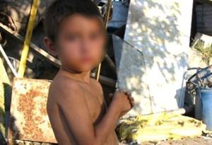 La-Defensoría-del-Pueblo-de-Argentina-pide-precisiones-sobre-los-casos-de-desnutrición-infantil-en-el-país